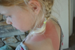 painful sunburn-home remedies